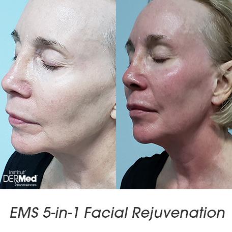 EMS Facial Treatment